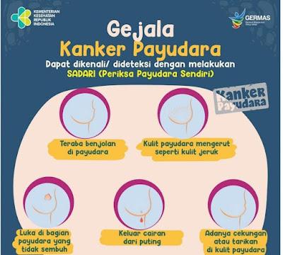 Sadari Bahaya Kanker Payudara