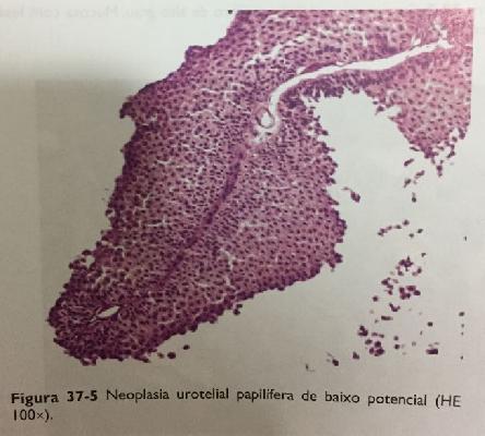 Papiloma benigno vejiga, ¿Cómo identificamos el cáncer de vejiga? de ce apare cancerul de san