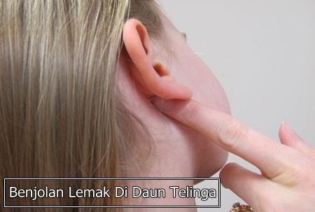 Obat Penghilang Benjolan Lemak Di Daun Telinga Tanpa Operasi