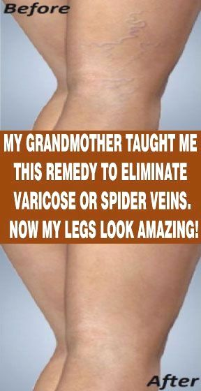 I Am 35 Years Old, My Thighs And Legs Had Varicose Veins, But Thank God This Prescription Eliminated all!
