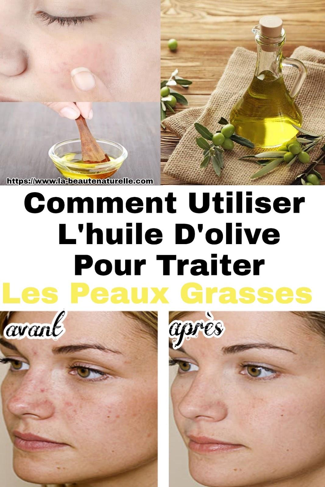 Comment Utiliser L'huile D'olive Pour Traiter Les Peaux Grasses