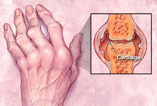 Terapi Lintah untuk Mengobati Arthritis