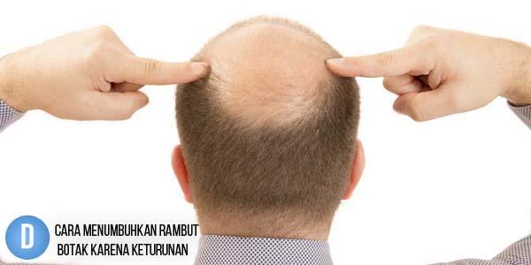 Cara Menumbuhkan Rambut Botak, penumbuh rambut Karena Keturunan, obat rambut, obat penumbuh rambut, cara menumbuhkan rambut botak Secara Alami, Obat Rambut Botak,