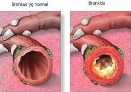 Cara menyembuhkan bronkitis secara alami