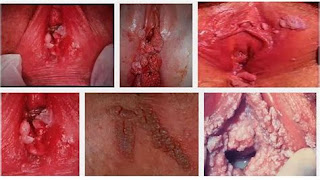 penyakit kutil kelamin dan gejala kutil kelamin