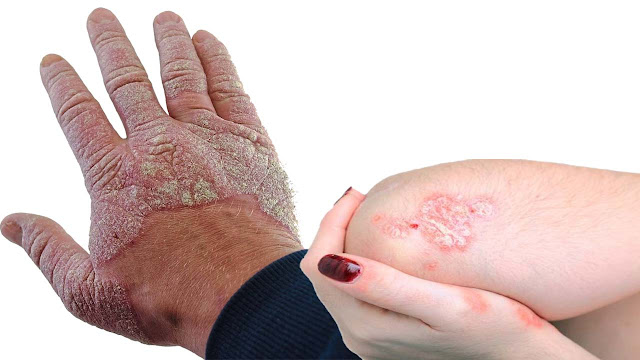 You also know the medical benefits of the medical science of psoriasis