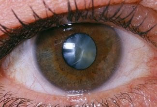 Eye With Clouded Lens - Cataract
