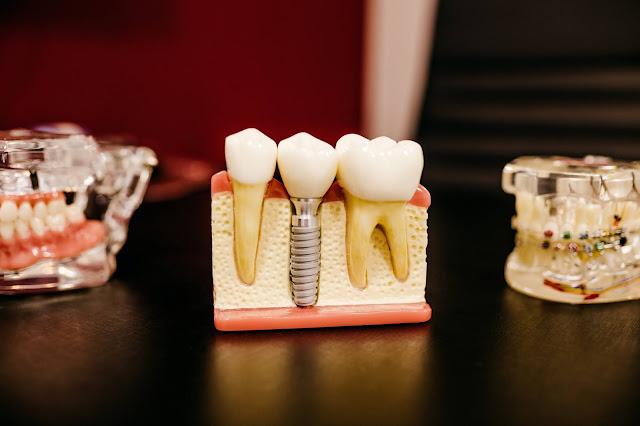 Dental implant:Photo by Jonathan Borba on Unsplash