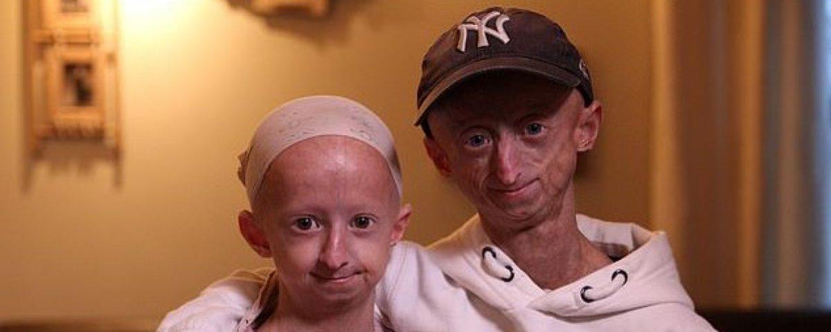 [progeria2-634x400]