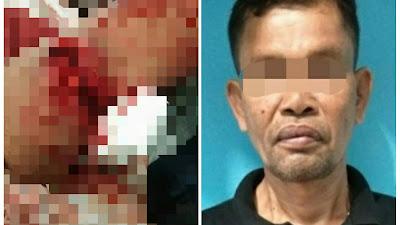 Emosi Lalu Bacok Korban dengan Parang, Pria Ini 'Gol' di Polres Tebingtinggi