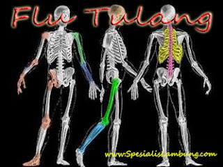 Penyakit Flu Tulang itu Chikungunya dan Osteomyelitis