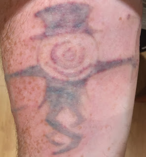 Tattoo swelling after Picosure removal