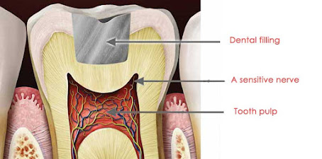 tooth pain after filling,tooth pain,pain after filling,tooth sensitivity after filling,filling,tooth pain after deep filling,throbbing tooth pain after filling,pain after a filling,severe pain after filling,tooth pain weeks after filling,tooth pain after filling by dentist,how to relieve tooth pain after filling,is pain after tooth filling normal,what causes pain after tooth filling,tooth,nerve pain after filling,pain after cavity filling,tooth filling,teeth pain