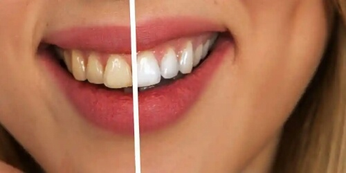 Home remedies to whiten and shiny teeth