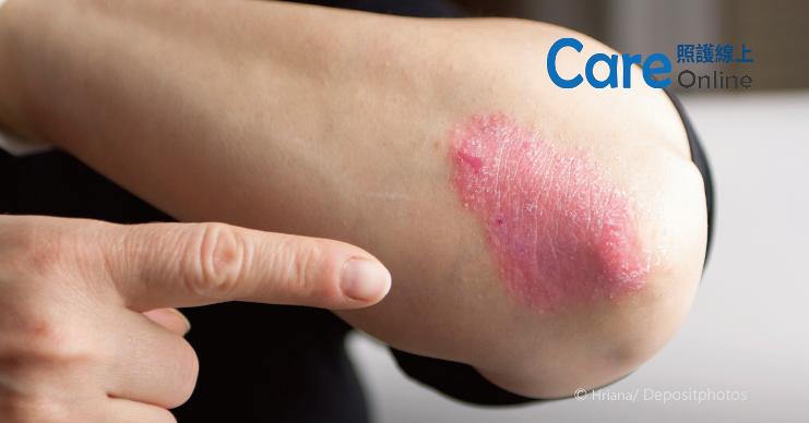 乾癬表現很多樣,正確診斷很重要