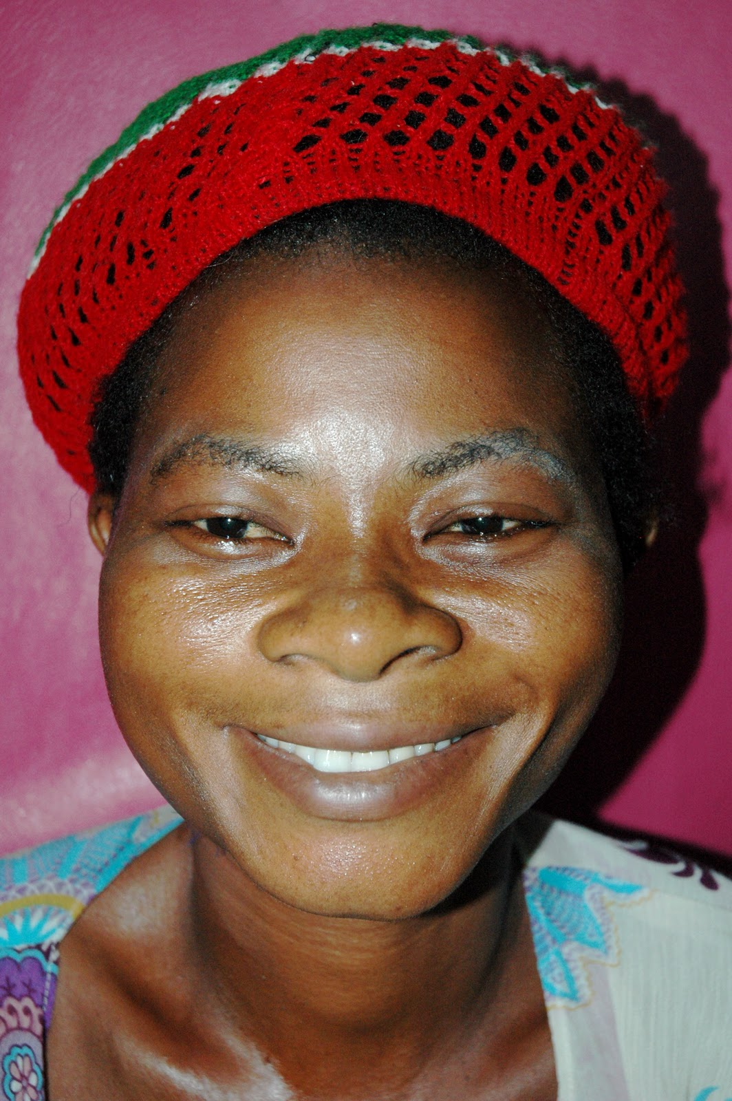 Gallery images and information: Adenoid Face Syndrome