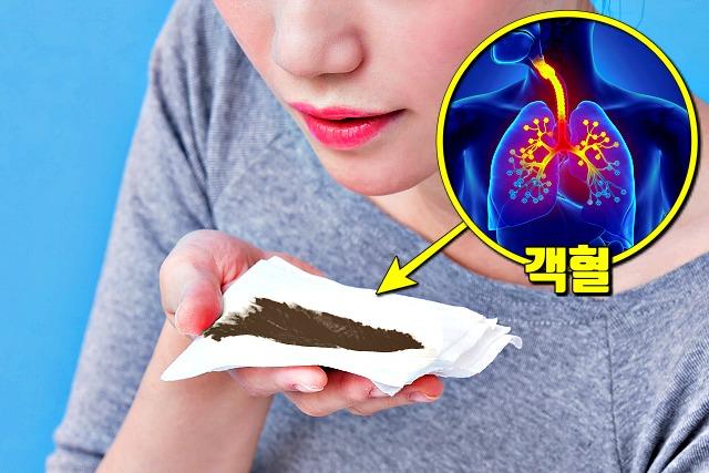 객혈, 우한폐렴 증상, 코로나바이러스 증상, 건강, 팁줌 매일꿀정보