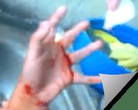 Cara Merawat Luka Berdarah