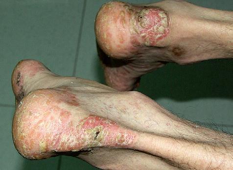 Tratamiento de la Psoriasis en Paciente con VIH