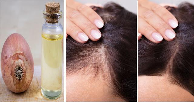 Faites votre propre shampooing à l'oignon et oubliez la perte de cheveux