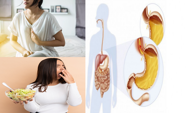 4 aliments à consommer pour soulager le reflux gastro-œsophagien