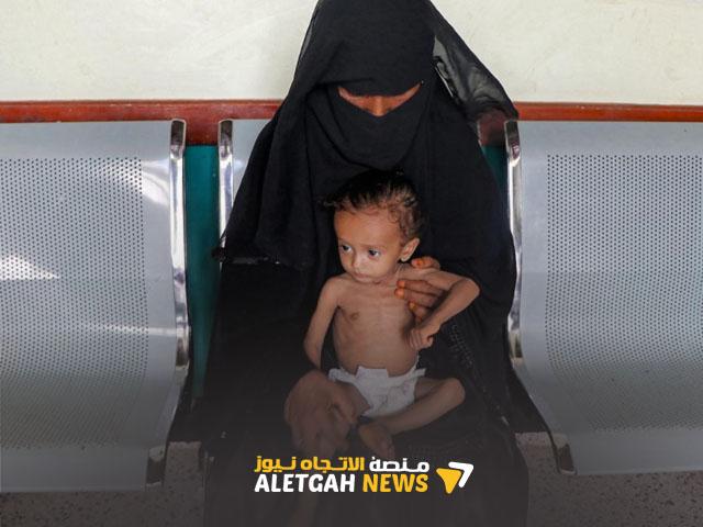 الولايات المتحدة تحذر من أن برامج المساعدات اليمنية قد يغلق إذا فشل المانحون في الوفاء بتعهدات التمويل