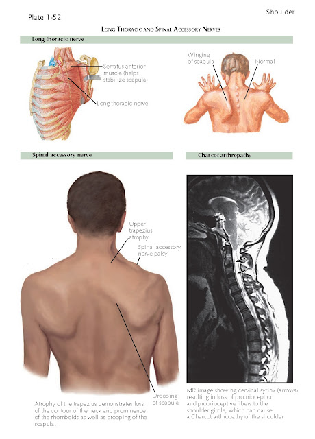 Neurologic Conditions Of The Shoulder