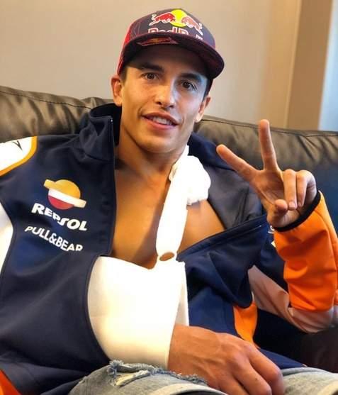 Marc Marquez Cidera Lengan Kanan Atas Jerez 19 Juli 2020