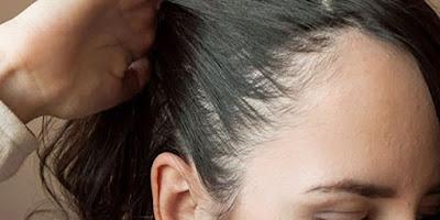 وصفات طبيعية تخلصك من فراغات الشعر نهائيا
