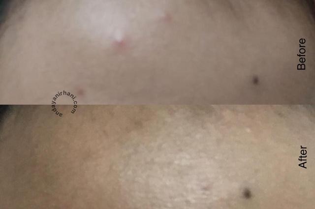 kulit berjerawat