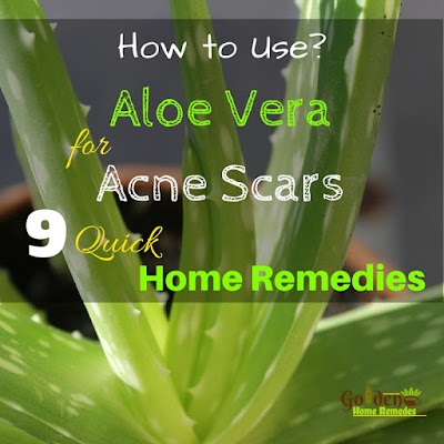 Aloe Vera For Acne Scars, Aloe Vera Acne Scars, Is Aloe Vera Good For Acne Scars, How To Use Aloe Vera For Acne Scars, Aloe Vera And Acne Scars, How To Get Rid Of Acne Scars, How To Get Rid Of Acne Scars Fast, Home Remedies For Acne Scars,