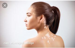 Tanda,gejala dan cara mencegahnya vitiligo