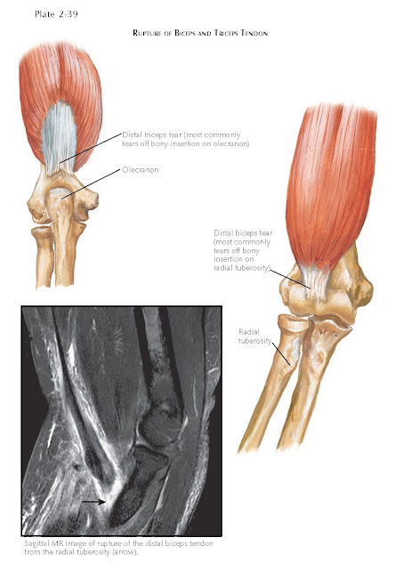 RUPTURE OF BICEPS AND TRICEPS TENDON