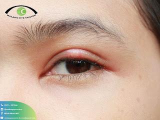 Klinik Mata Malang Dokter Spesialis Mata Terbaik dan Pengobatan Super Canggih