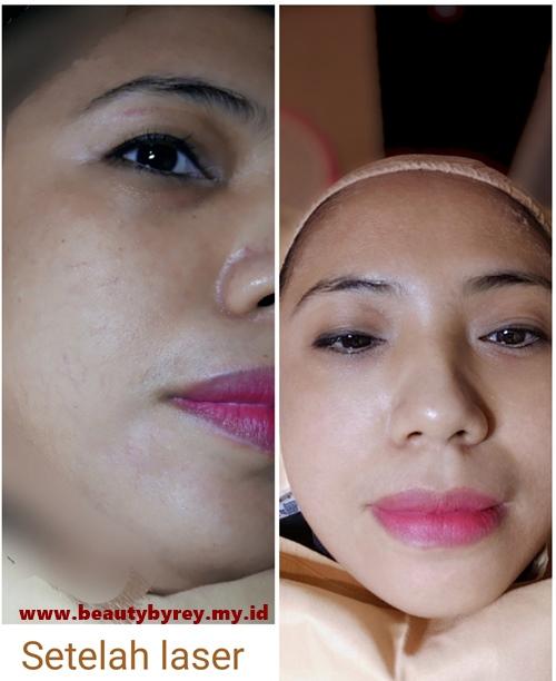 hasil laser korean bright toning ella skin care Sidoarjo