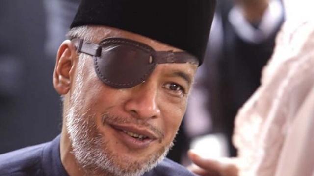 Thareq Habibie Buka-bukaan Alasan Pakai Penutup Mata