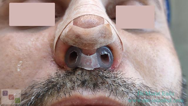 Nostril retaniner - 10 days after Revision Rhinoplasty Operation + Septum Perforation Closure Surgery