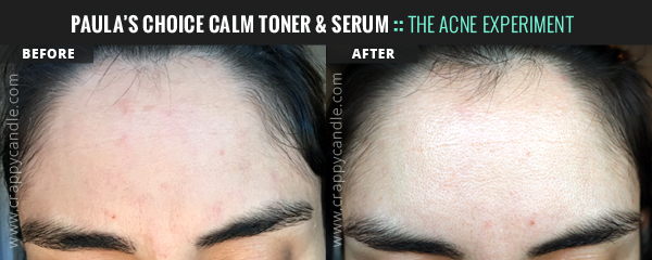 Paula's Choice CALM Redness Relief Before & After - The Acne Experiment