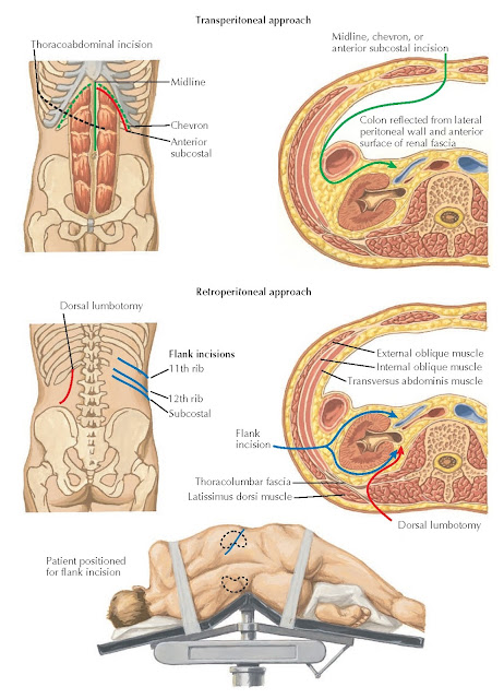 OPEN NEPHRECTOMY: INCISIONS FOR TRANSPERITONEAL AND RETROPERITONEAL APPROACHES