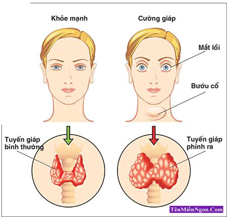 Các yếu tố nguy cơ và triệu chứng của ung thư Tuyến giáp