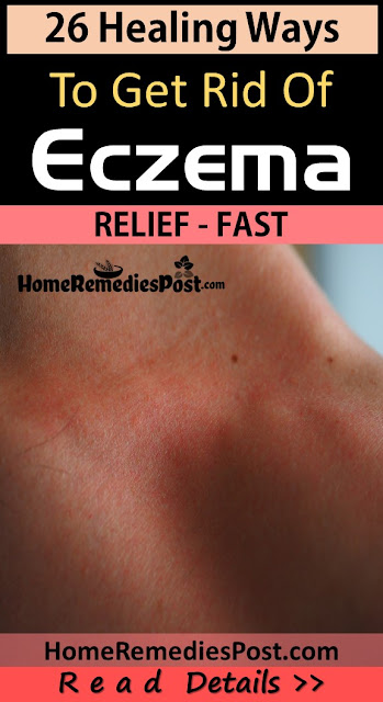 How To Get Rid Of Eczema, Home Remedies For Eczema, Eczema Treatment, Eczema Home Remedies, How To Treat Eczema, How To Cure Eczema, Eczema Remedies, Remedies For Eczema, Cure Eczema, Treatment For Eczema, Best Eczema Treatment, Eczema Relief, How To Get Relief From Eczema, Relief From Eczema, How To Get Rid Of Eczema Fast,