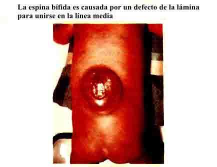 Anatomía del Tórax espina bífida