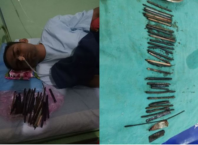 Doctors stunned to find 33 objects including razors, knives and a screwdriver in man's stomach