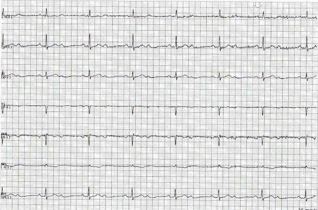 ECG Rhythms 21 AV block - A subtype of Second degree AV block