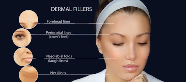 what to expect after dermal fillers