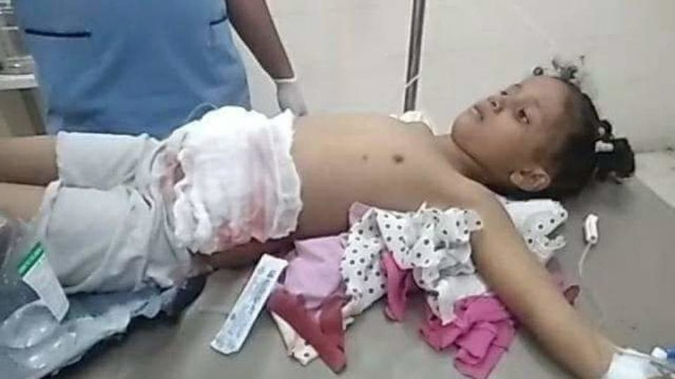 رصاص قناص حوثي يختطف حياة طفلة بالخامسة من عمرها / الأهرام نيوز