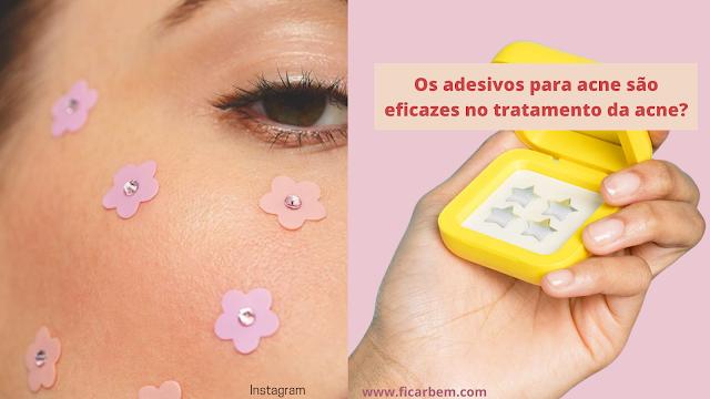 Vários adesivos para acne estão sendo desenvolvidos