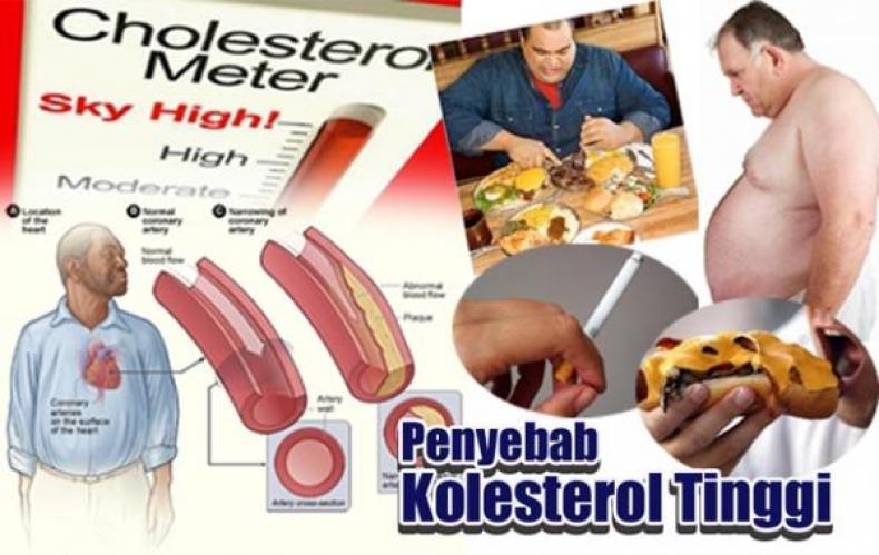 Obat Kolesterol Di Apotik Herbal