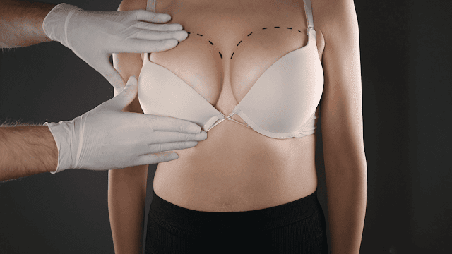 which type of breast implant feels the most natural by barbies beauty bits