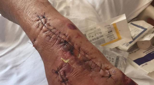 Tangan laki-laki digigit serangga dan tercemar basil pemakan daging Berita Terhangat Mengerikan, Tangan Pria ini Terinfeksi Bakteri Pemakan Daging
